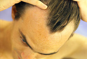 finasteride side effects